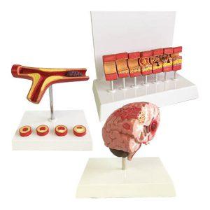 Occluded Artery Brain Stroke Models